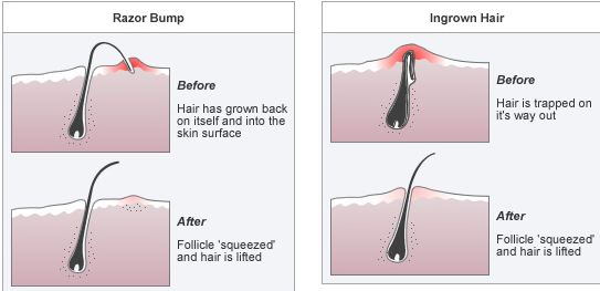 Ingrown-hair-and-razor-bumps