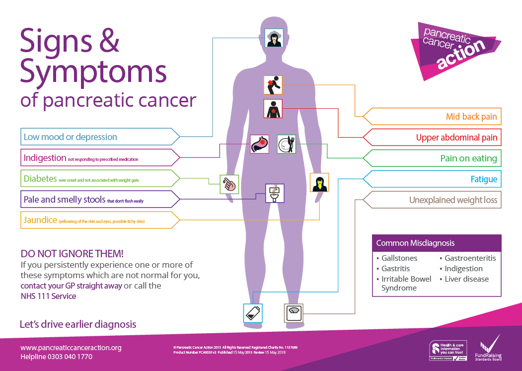 Signs Amp Symptoms Of Pancreatic Cancer Info You Should Know